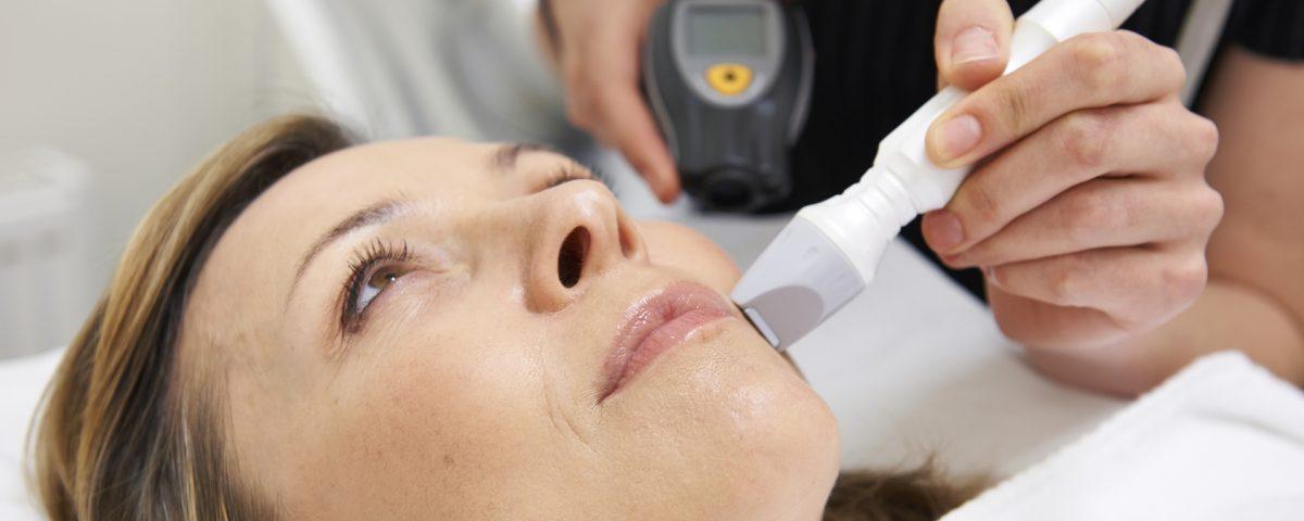 Depilacja toruń depilacja laserem depilacja Palomar Vectus