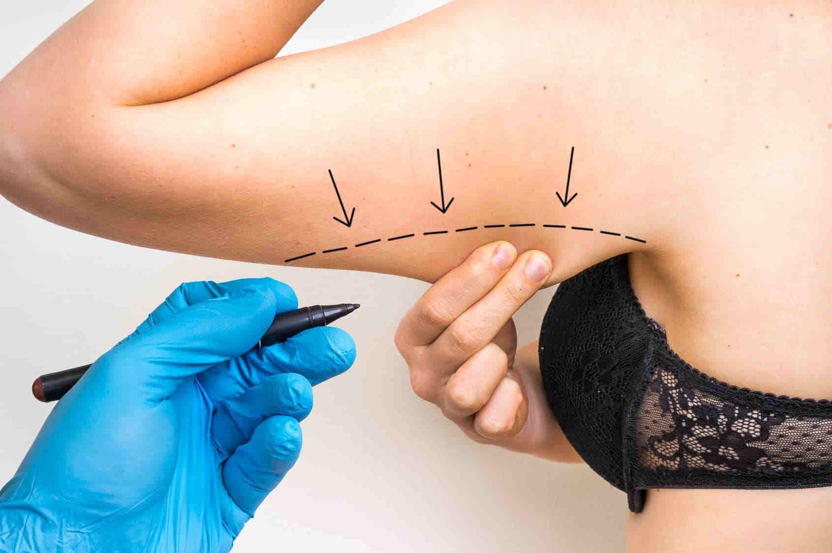 Zabiegi na obwisłą skórę ramion